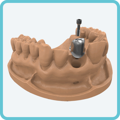 index.php/cad-cam-fresatura-abutment-individuali